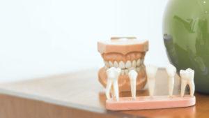 Tempo de vida útil de um dente