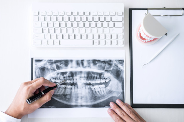 Raio-x dentário