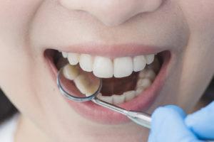 fazer tratamento no dentista