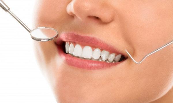 limpeza dentária feita no consultório